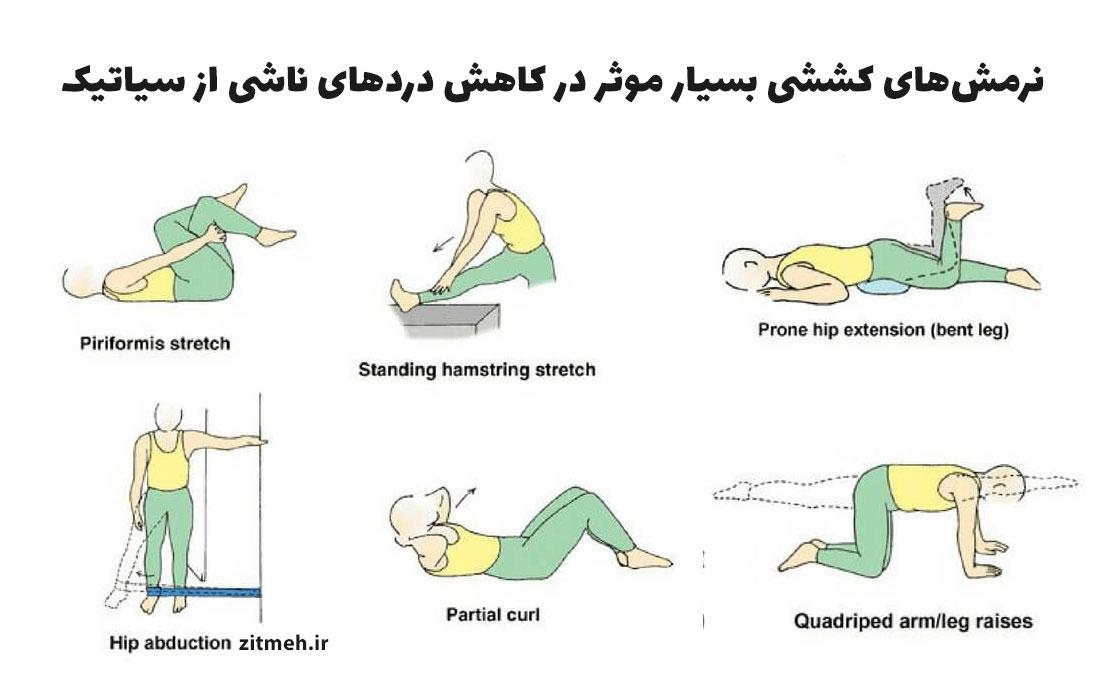عکس حرکات ورزشی و نرمشی برای درمان سیاتیک